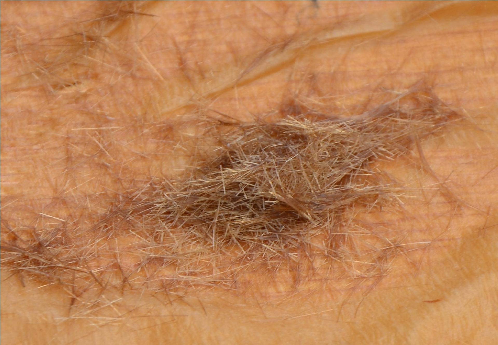 kann haare wasserstoffperoxid bleichen